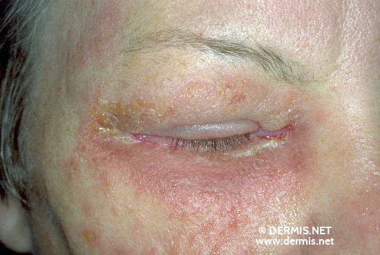 diagnosis: Allergic Contact Dermatitis, Acute & Chronic