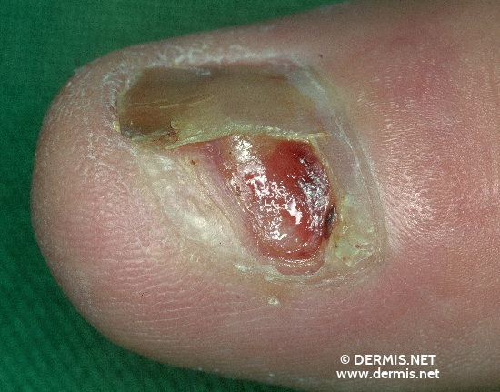 localisation: nail plate of the finger diagnosis: Acrolentiginous Melanoma (ALM)