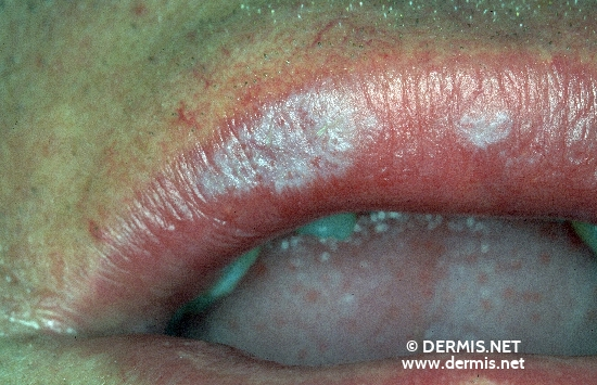 localisation: mouth (skin) diagnosis: Lichen Planus of the Mucosa