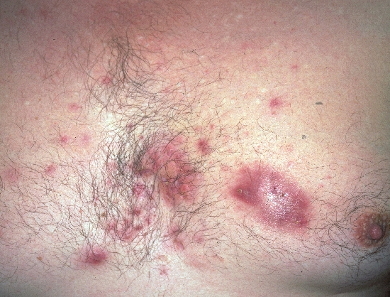 localisation: chest diagnosis: Acne Inversa Acne Conglobata