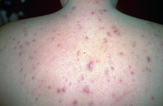 diagnosis: Acne Vulgaris