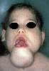 localisation: chin, diagnosis: Cystic Hygroma