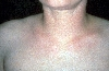 localisation: Hals, Diagnose: Scleroedema adultorum Buschke