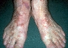 localisation: back of the feet, toe, diagnosis: Progressive Pigmented Purpura