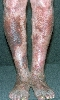 localisation: legs, diagnosis: Progressive Pigmented Purpura