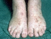 localisation: feet, diagnosis: Purpura Annularis Telangiectodes Majocchi