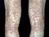 localisation: hollow of the knee, diagnosis: Progressive Pigmented Purpura