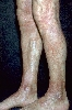 localisation: knee, lower leg, diagnosis: Progressive Pigmented Purpura