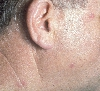 localisation: face, neck, diagnosis: Follicular Mucinosis