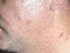 localisation: cheek, neck, diagnosis: Follicular Mucinosis