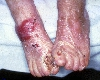 localisation: feet, diagnosis: Epidermolysis Bullosa Hereditaria