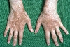 localisation: back of the hands, diagnosis: Chronic Cutaneous Graft-versus-Host-Reaction