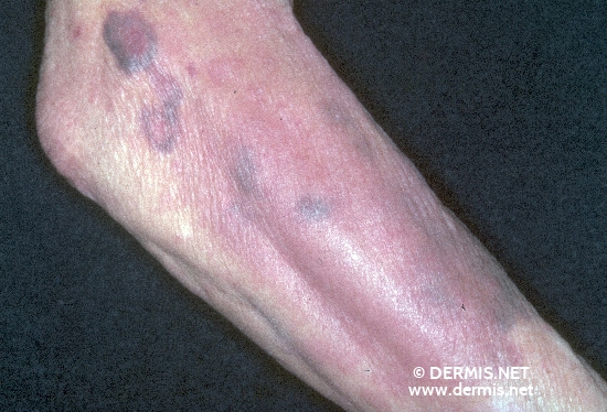 localisation: lower arms diagnosis: Purpura Senilis