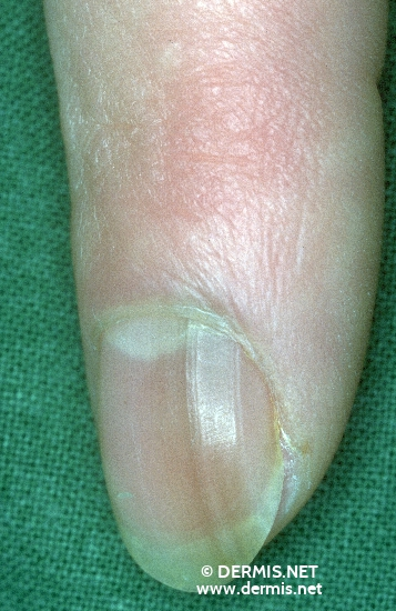 localisation: nail plate of the finger diagnosis: Melanonychia Striata Laugier-Hunziker´s Syndrome