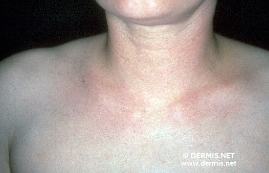 localisation: neck diagnosis: Scleroedema Adultorum Buschke