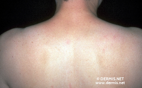 localisation: upper back diagnosis: Scleroedema Adultorum Buschke