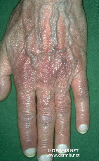 localisation: back of the hands diagnosis: Acrodermatitis Chronica Atrophicans Herxheimer
