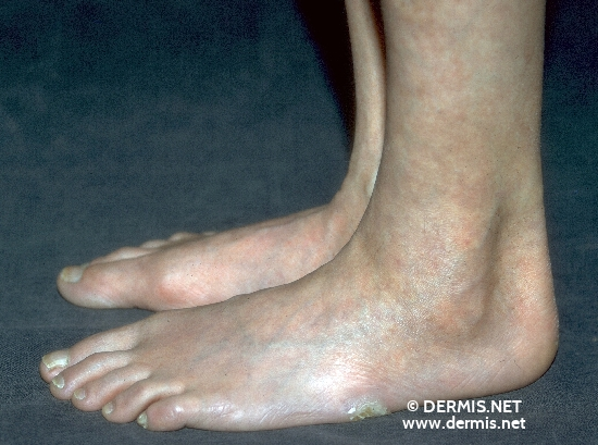 localisation: feet diagnosis: Progeria Adultorum
