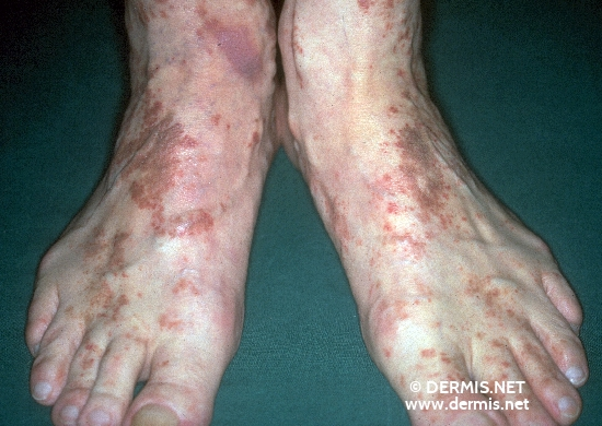 localisation: back of the feet toe diagnosis: Progressive Pigmented Purpura