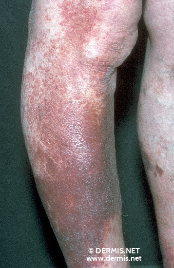 localisation: legs diagnosis: Progressive Pigmented Purpura