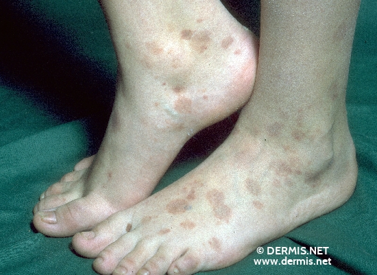 localisation: feet diagnosis: Purpura Annularis Telangiectodes Majocchi