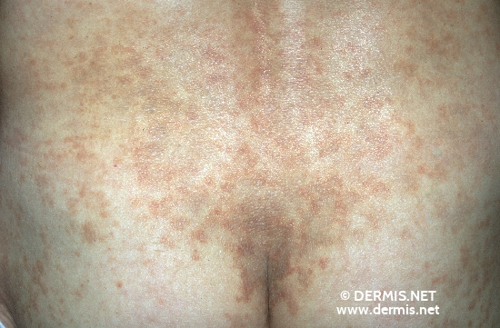 localisation: lower back diagnosis: Progressive Pigmented Purpura