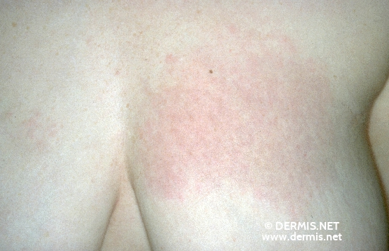 localisation: chest diagnosis: Reticular Erythematous Mucinosis