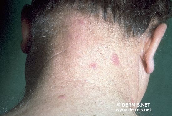 localisation: Nacken Diagnose: Mucinosis follicularis