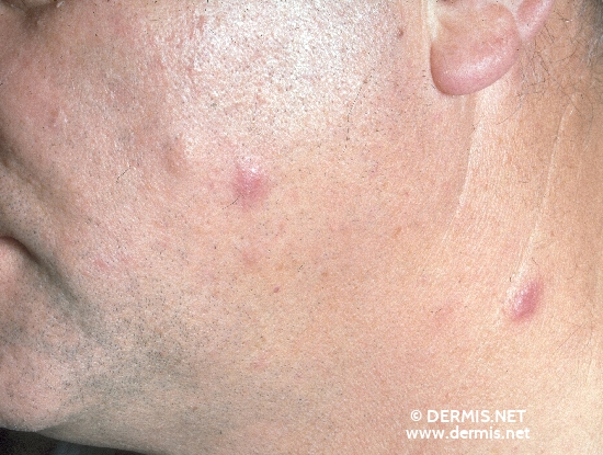 localisation: cheek neck diagnosis: Follicular Mucinosis
