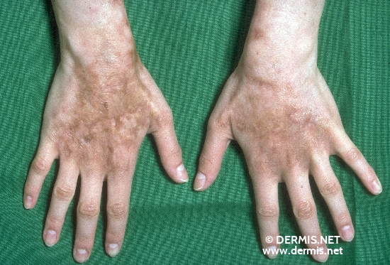 localisation: back of the hands diagnosis: Chronic Cutaneous Graft-versus-Host-Reaction