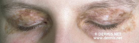 localisation: eyelids diagnosis: Chronic Cutaneous Graft-versus-Host-Reaction