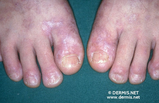 localisation: forefoot toenail diagnosis: Chronic Cutaneous Graft-versus-Host-Reaction