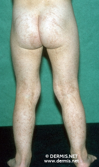 localisation: buttocks legs diagnosis: Incontinentia Pigmenti