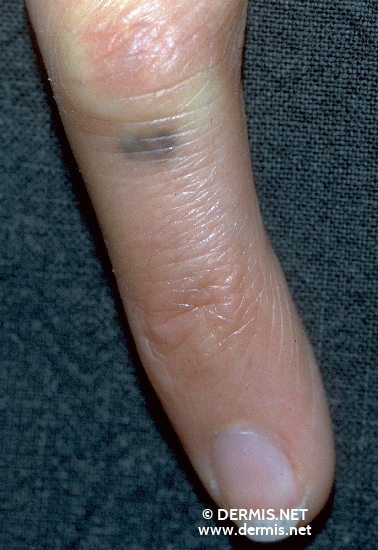 localisation: finger diagnosis: Tattooing, Accidental