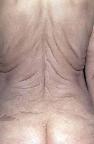 Cutis Laxa Dermis - cutis laxa (image)