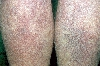 localisation: legs, diagnosis: Disseminated Essential Telangiectasia