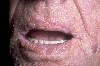 localisation: lips (skin), diagnosis: Acanthosis Nigricans Maligna
