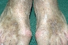 localisation: back of the feet, diagnosis: Acroangiodermatitis Mali