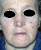localisation: face, diagnosis: Rendu-Osler Syndrome