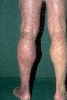 Lokalisation: Beine, Diagnose: Acrodermatitis chronica atrophicans Herxheimer