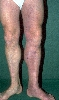 localisation: legs, diagnosis: Acrodermatitis Chronica Atrophicans Herxheimer