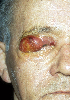 localisation: eyes, diagnosis: Mycosis Fungoides
