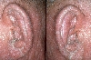 localisation: ear, diagnosis: Sezary Syndrome