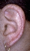 localisation: auricle, diagnosis: Congenital Dyskeratosis