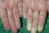 localisation: palms, diagnosis: Raynaud's Disease