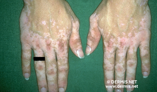 localisation: back of the hands diagnosis: Vitiligo