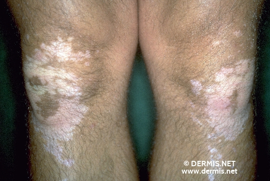 localisation: knee diagnosis: Vitiligo
