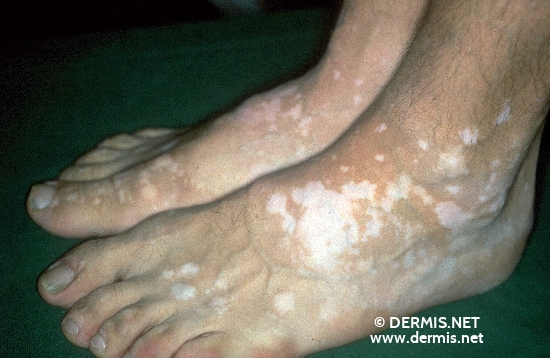 localisation: back of the feet diagnosis: Vitiligo