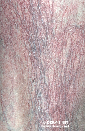 diagnosis: Disseminated Essential Telangiectasia