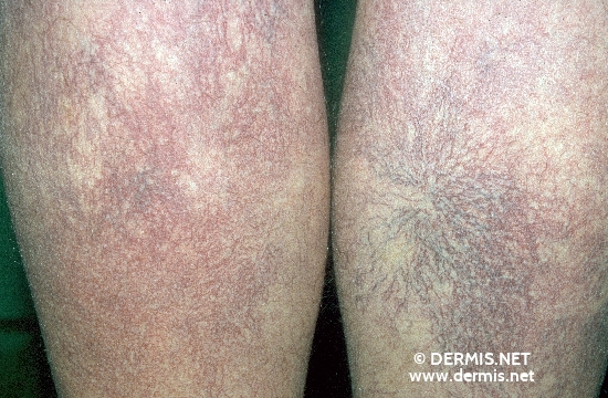 localisation: legs diagnosis: Disseminated Essential Telangiectasia
